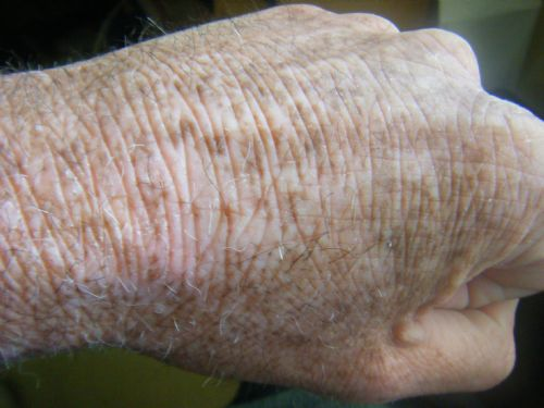 picture showing discoloration of the skin from eczema
