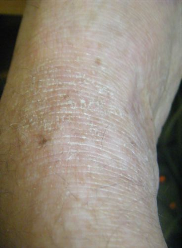 Picture of dry skin on the foot