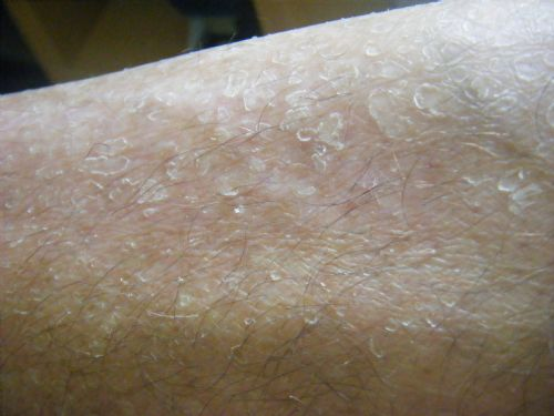 Picture of flaky skin